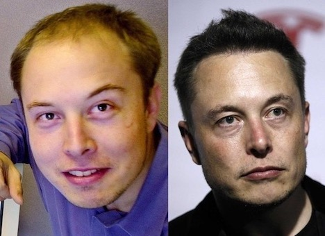 elon-musk-before-after
