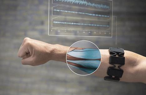 gesture-control-armband-device